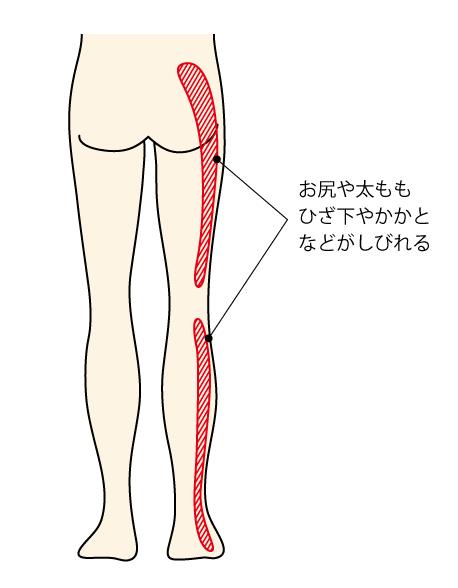 腰痛克服 椎間板ヘルニア 足のしびれ