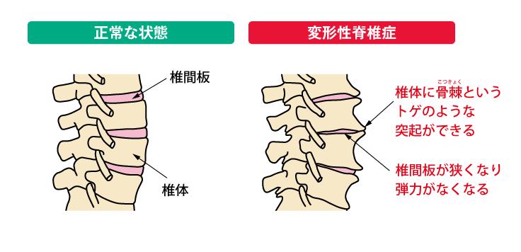腰痛克服 変形性脊椎症