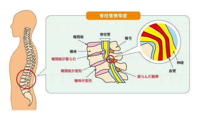 腰痛克服 脊柱管狭窄症