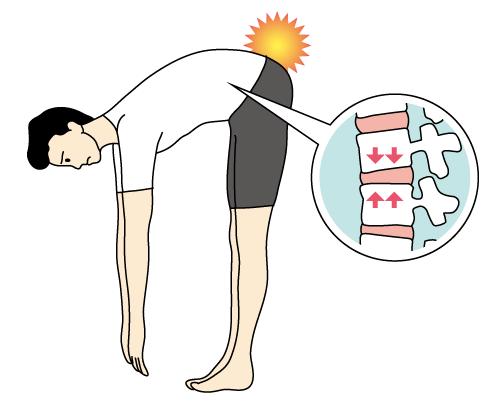 腰痛克服 腰痛の原因 セルフチェック